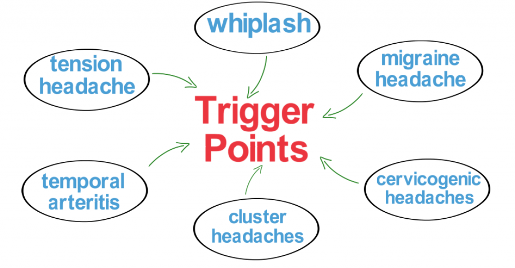 common trigger point causes of headaches